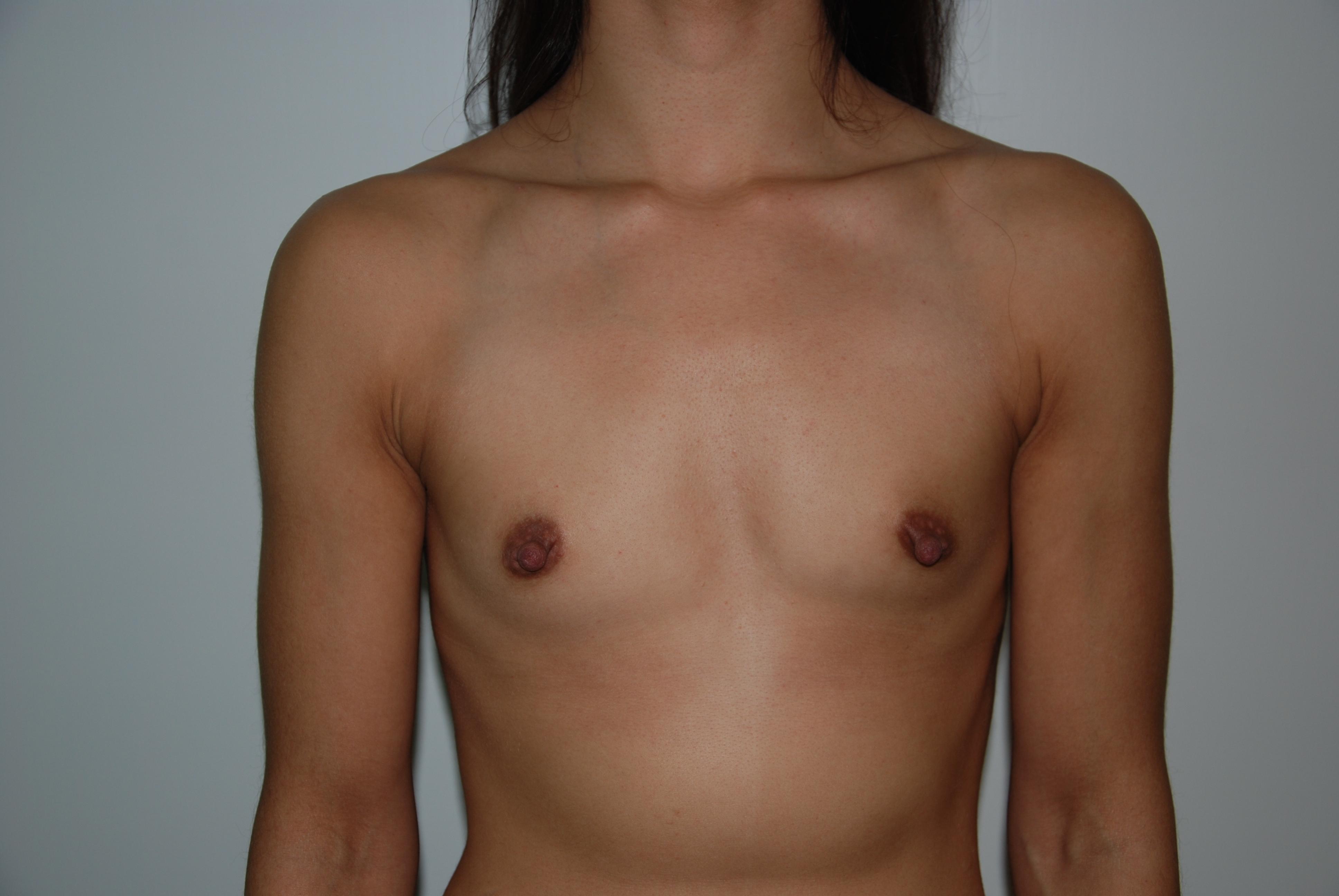 måste man byta bröstimplantat
