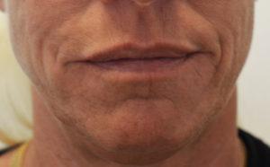 rynkor kring munnen